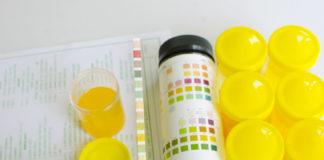 Vermehrung der Erythrozyten im Urin