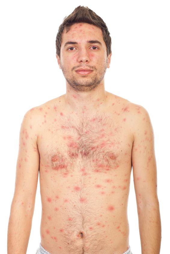Behandlung von hohem Fieber bei Erwachsenen