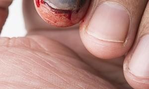 Fingernagel löst sich ab
