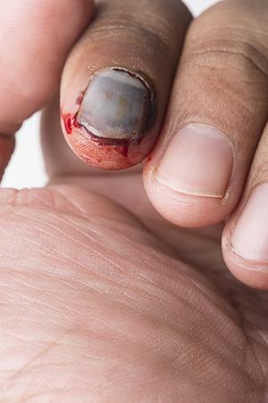 Fingernagel Löst Sich Nach Quetschung
