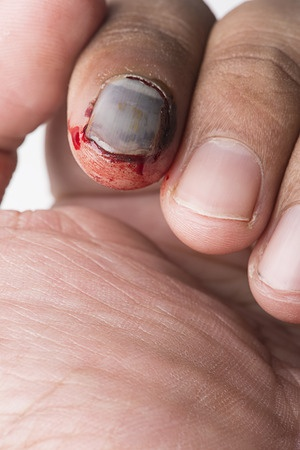 Fingernagel Lu00f6st Sich Vom Nagelbett Was Tun? - Vitaloo