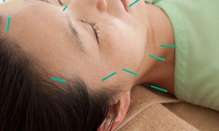 Wirksamkeit der Akupunktur